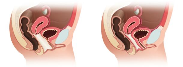 tratamiento-sindrome-relajacion-vaginal-torre-del-mar-velez-malaga